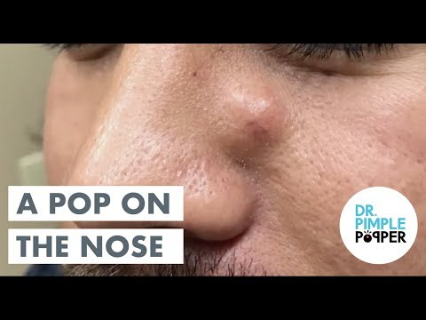 An Excor CYST em with Dr Pimple Popper