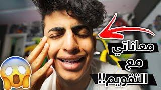 معاناتي مع تقويم الأسنان 😬💔 ..