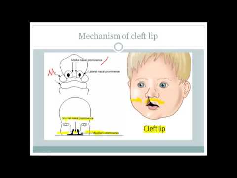 How cleft lip and cleft palate occurs (For USMLE step 1)??