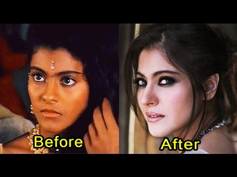 7 Bollywood Divas Who Went For Skin Lightening Treatment (2017)
