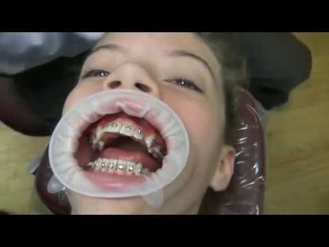 Watch how we put your braces on