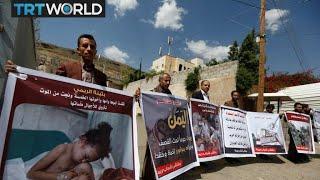 Is the UAE torturing prisoners in Yemen?