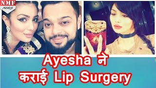 Ayesha Takia ने कराई Lip Surgery,देखिए  Ayesha का नया LOOK