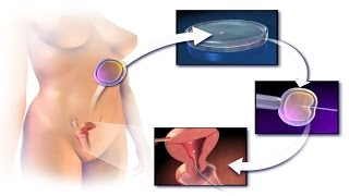 How to Get Pregnant with ICSI? Intracytoplasmic Sperm Injection Procedure Step by Step Video IVF