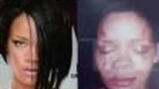 Rihanna's accident :(