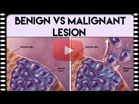 Medical Coding Basics — Benign vs. Malignant Lesion