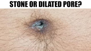Dilated Pores, Tonsil & Navel Stones - Lighted Pick Uses!