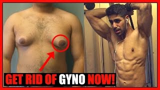 How To Get Rid Of GYNO & Lose Chest Fat - NO MORE MAN BOOBS!