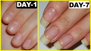 How to Grow Nails Faster - GUARANTEED RESULTS | PrettyPriyaTV