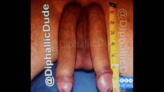 DOUBLE DICK DUDE (DDD) With Diphallia....WARNING!  Man With 16-inch Penis...Living with two penises.
