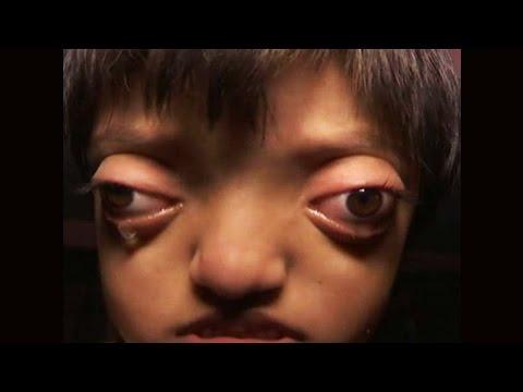 Bihar girl looks like Alien suffering from crouzon syndrome |वनइंडिया हिन्दी