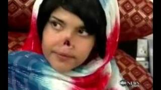 New Nose for Afghan Girl
