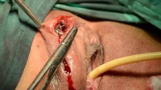 Vulvar Angiomyxoma