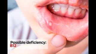 Vitamin Deficiency | Zoology (Tamil)