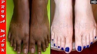 Only Do This and Whiten your Feet Instantly - Feet Whitening Pedicure At Home - Priya Malik