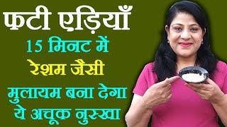 Cracked Heels Remedies - फटी एड़ियों की देखभाल कैसे करें - Beauty Tips in Hindi by Sonia Goyal #20