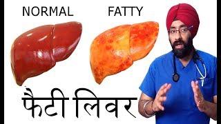 फैटी लिवर की सच्चाई (Hindi) FATTY LIVER SECRETS Explained by Dr.Education | NAFLD | NASH | Cirrhosis