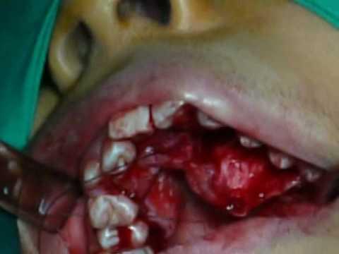 Cirugia de Canino incluido por Palatino Mundo Dental Sur