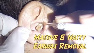 Most Massive & Nasty Earwax Removal Ever