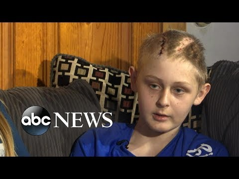 Xxx Mp4 Miraculous Recovery For 13 Year Old Declared Brain Dead 3gp Sex