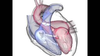 Heart X-Ray Animation