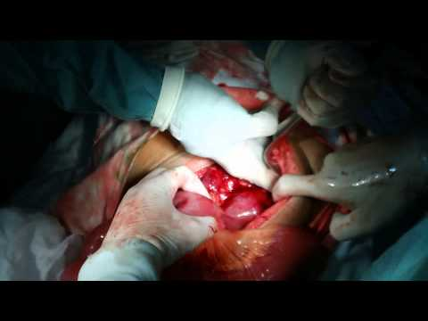 20110317 Ung thư đại tràng tái phát Recurrent Colonic Cancer