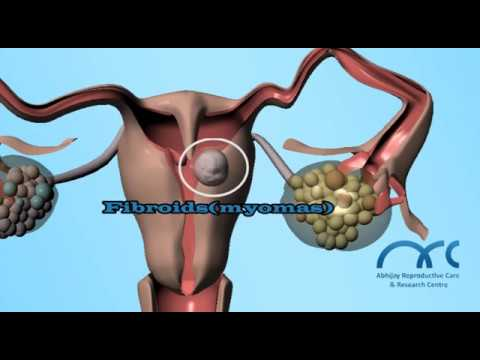 Xxx Mp4 Hysterosalpingogram Procedure Hysterosalpingogram Video ARC Chennai 3gp Sex