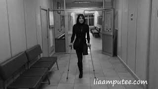Amputee girl crutching in hospital