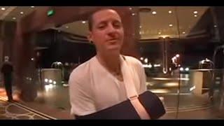 Chester Bennington broken wrist VS Justin Bieber water bottle.
