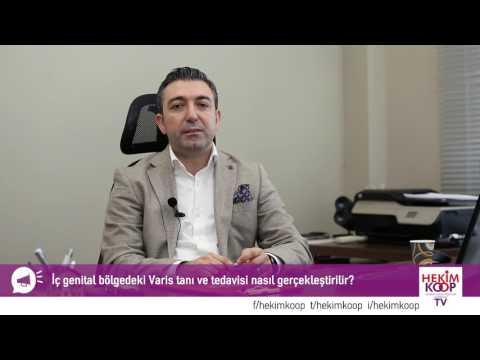 İç Genital Bölge Varisi Nedir, Tedavisi Nasıl Yapılır?  - HekimKoop TV