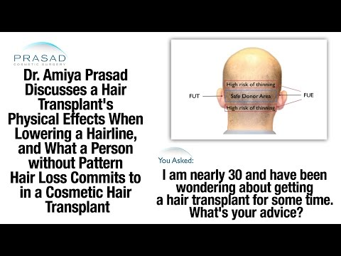 The Physical Effects of a Hair Transplant for Hairline Lowering that Need Careful Consideration