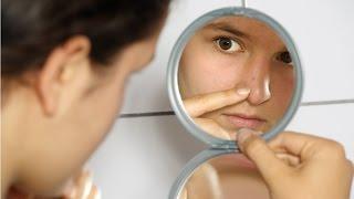 Curso Estética Facial - Pele Acneica - Cursos CPT