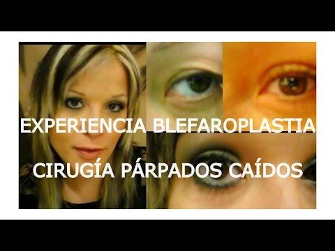 Xxx Mp4 EXPERIENCIA BLEFAROPLASTIA CIRUGÍA PARPADOS CAÍDOS 3gp Sex