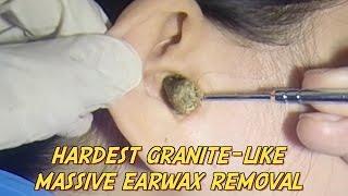 Hardest Granite-like Massive Earwax Removal