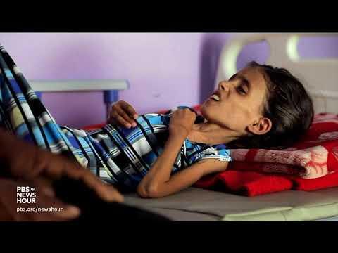 Xxx Mp4 Yemen 39 S Spiraling Hunger Crisis Is A Man Made Disaster 3gp Sex
