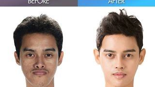 Let Me In Thailand, and the amazing plastic surgery makeover by Korean doctors!