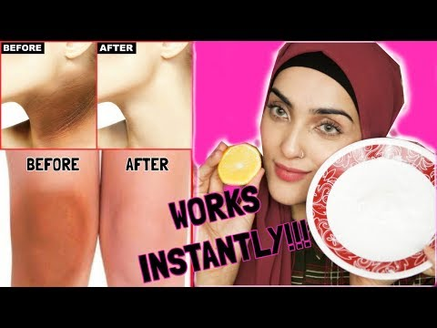 Download Lagu How To Lighten Dark Underarms, Elbows And Knees INSTANTLY ~ Immy MP3
