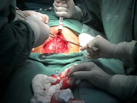 parto cesário imagens fortes