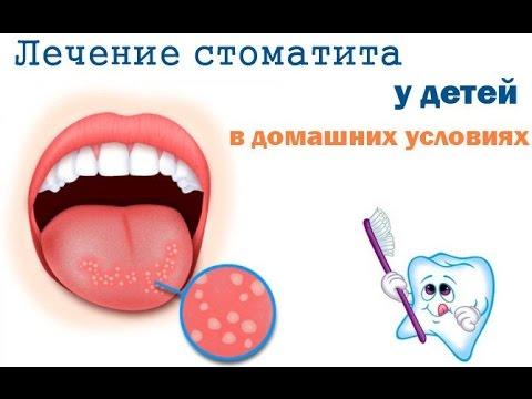 Как выглядит стоматит во рту чем лечить у детей