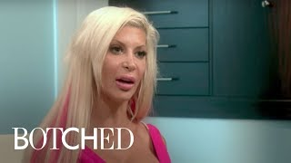 Botched | Frenchy Likes Everything Big! | E!