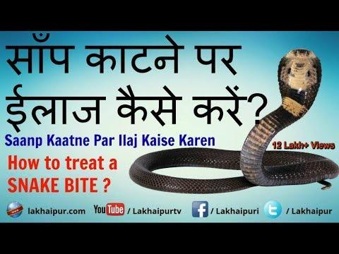 Xxx Mp4 सांप काटने का ईलाज Saanp Katne Ka Ilaj Treatment Of Snake Bite In Hindi 3gp Sex
