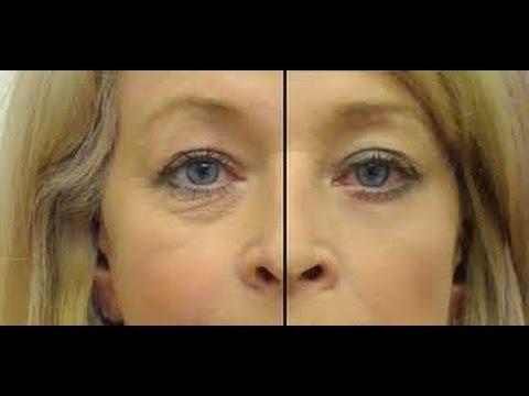 Haz tu serum de ojos para eliminar arrugas ojeras y bolsas Anastassia Sfeir