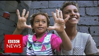 Yemen: Emad was 4 years old when a missile landed on his house.- BBC News