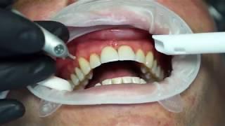 Gingivoplasty with LiteTouch dental laser by Dr. Snyder