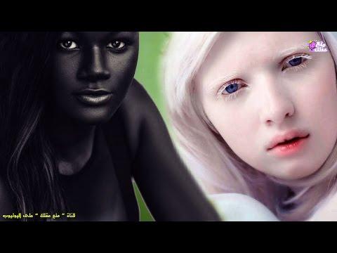 Xxx Mp4 5 فتيات يمتلكن أغرب لون بشرة فى العالم 3gp Sex