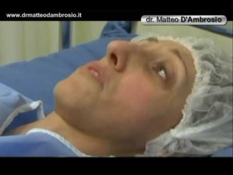 Intervento di rinoplastica rinosettoplastica operazione al naso di chirurgia estetica