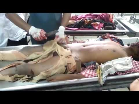 Postmortem video||Dissection human body ||Alcohol patient