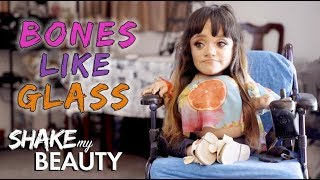 The Make-Up Artist With Bones Like Glass   SHAKE MY BEAUTY