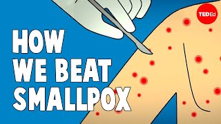 How we conquered the deadly smallpox virus - Simona Zompi