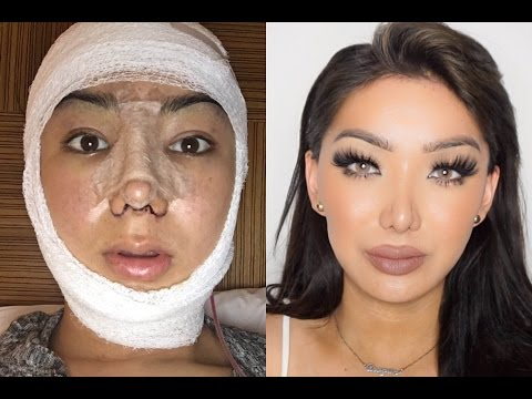 My Facial Plastic Surgery Story! | Dragun